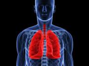 Трансплантация (пересадка) легких в Индии