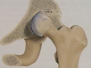 Артроз (остеоартроз)