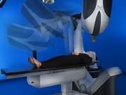 Радиохирургическое лечение с использованием CyberKnife