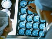 Обследования и диагностика в Германии