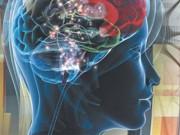 Эпилепсия. Клиники