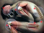 Фибромиалгия (мышечная боль)