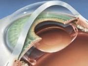 Хирургическое лечение катаракты в Германии