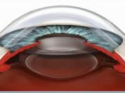 Имплантация рефракционных линз
