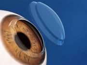 Трансплантация (пересадка) роговицы глаза в Индии
