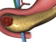 Лечение панкреатита и заболеваний поджелудочной железы в Германии
