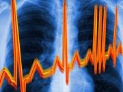 Мерцательная аритмия: обследование и лечение в Германии
