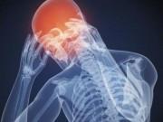 Мигрени. Клиники