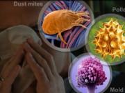 Клиники лечения аллергии в Германии