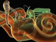 Невриномa слухового нерва