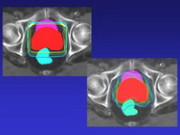 Облучение без побочных явлений  с помощью новейшей технологии Intensiv Modulate Radiotherapy