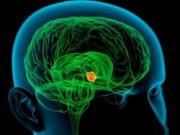 Диагностика и лечение опухолей головного мозга