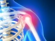 Ортопедия. Хирургия плеча