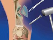 Остеомиелит кости и челюсти