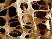 Остеопороза: Лечение плотности костей в Германии