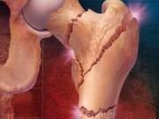 Методики лечения остеопороза в Германии