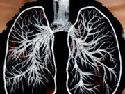 Пересадка легких