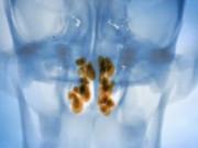 Полипы и полипоз толстой кишки, лечение и диагностика