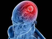 Диагностикаи лечениеракаголовного мозгав Германии