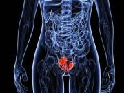 Рак мочевого пузыря. Лечение и диагностика