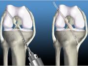 Медицинская реабилитация после пластики передней крестообразной связки