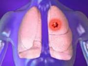 Саркоидоз легких: лечение в Германии
