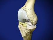 Сигнатурное эндопротезирование коленного сустава