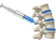 Клеточная терапия в ортопедии