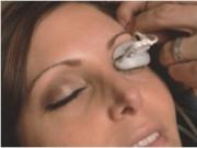 Сухой глаз. Лечение с помощью единственной в мире технологии LipiFlow