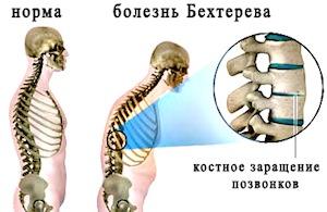 Остеохондроз пояснично крестцового отдела лечение
